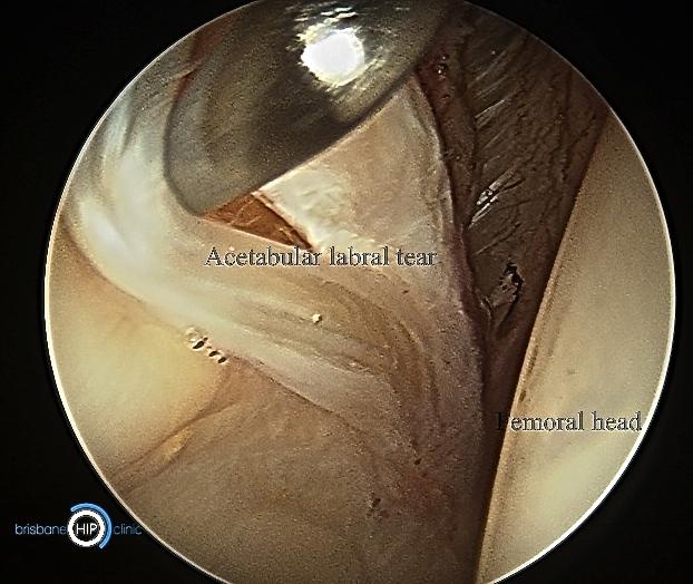 Acetabular Labral Tear Brisbane Hip Clinic Australia